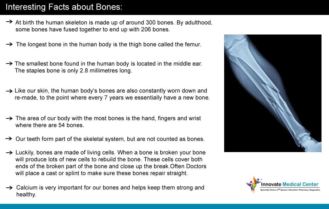 INTERESTING FACTS ABOUT BONES • At birth the human skeleton is made up of  around 300 d07e4095b5e