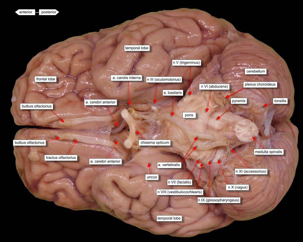 brain ventral view labels | Medical | Pinterest | Brain and Nursing ...