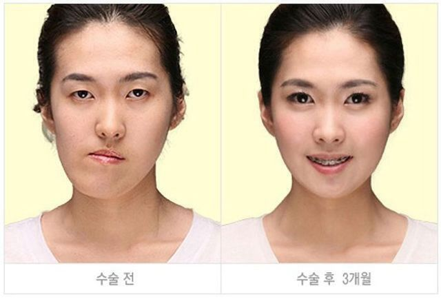Before And After Plastic Surgery Korean Plastic Surgery