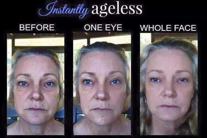 eye bags gone like botox without the needles