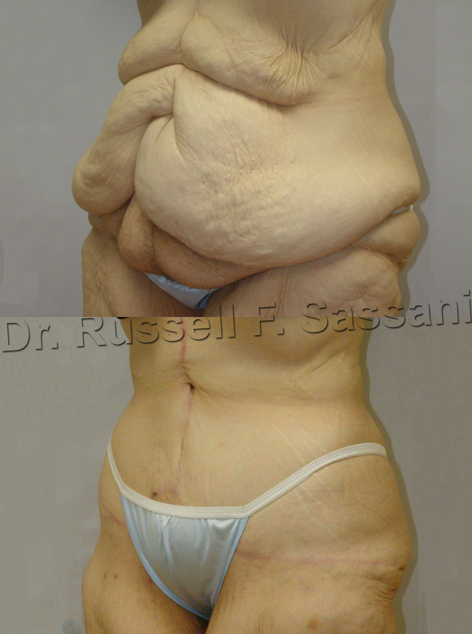 Before After Pic Of Fleur De Lis Abdominoplasty Used In Situations