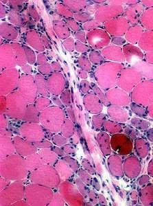 Dermatomyositis | Rare disease, Muscle weakness, Juvenile ...