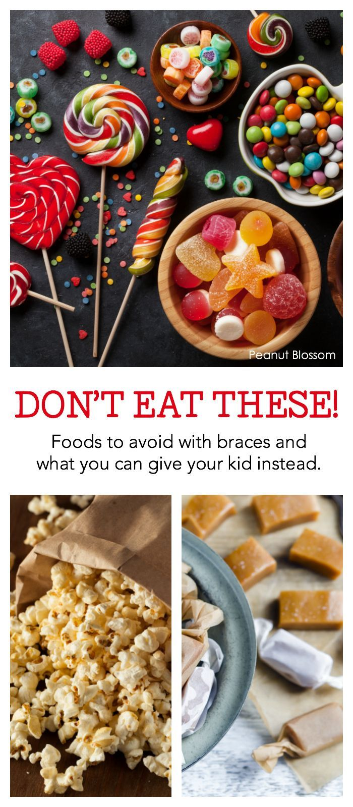 Don't eat these! Foods to avoid with braces and yummy