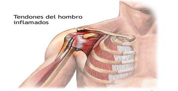 Remedios para tendones inflamados