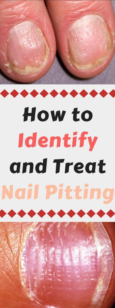 How to Identify and Treat Nail Pitting - | Pinterest | Craft