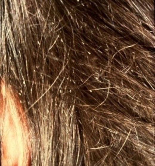 How to Get Rid of Head Lice and Nits With Vinegar and Conditioner | Head  lice nits, Lice nits, Head lice remedy