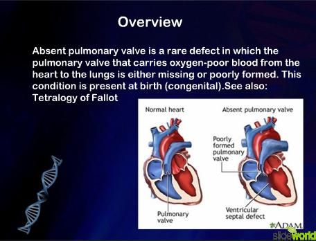 Pin By Nonas Arc On Absent Pulmonary Valve Normal Heart
