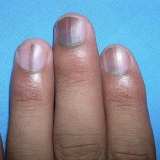 Effects Of Nutrient Deficiency On The Nails What Do They Indicate About Your Health Nutrient Deficiency Nail Vitamins Nail Symptoms