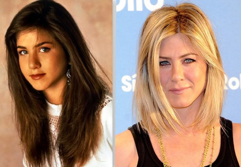 Jennifer Aniston Before And After A Nose Job Then Now People