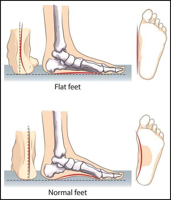 Pin on shoes for flat feets
