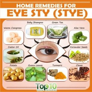 Home Remedies For Eye Sty Stye Tips Natural Home