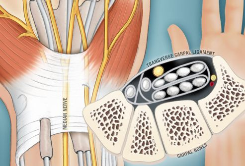 Carpal Tunnel Syndrome Pictures Slideshow: Symptoms, Causes