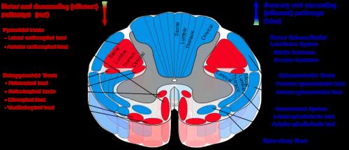 Scoliosis Wikipedia