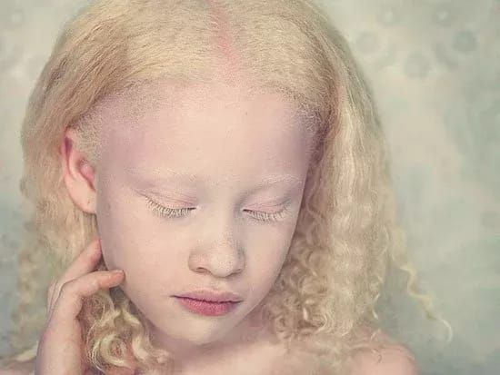 Photo: Mysterious Albinos in Africa