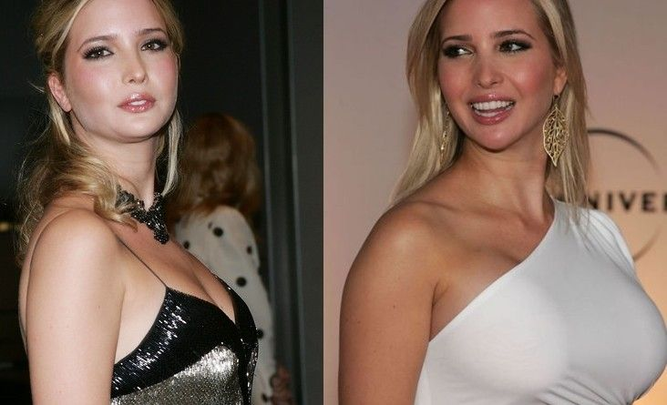 Celebrities Before and After Photoshop | Plastic Surgery ...