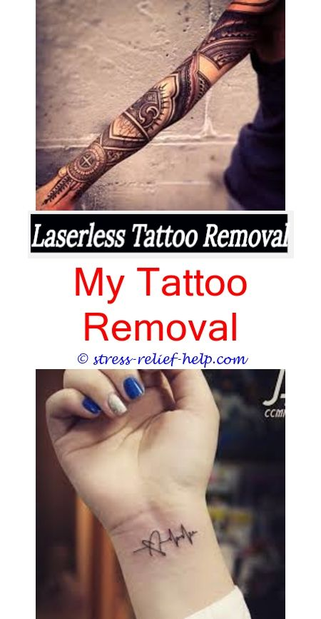 tattoo removal cream reviews how tattoos get removed - how long does ...