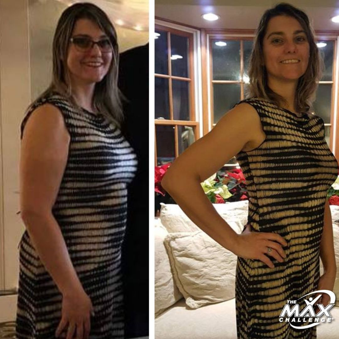"""Meet Karen! 😊 """"After seeing the """"before and after"""" pictures of a high school friend of mine on Faceb..."""