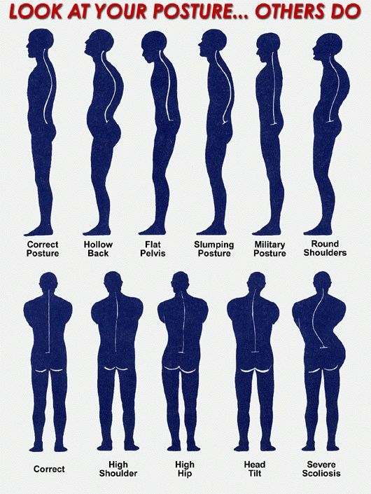 How good is your posture?