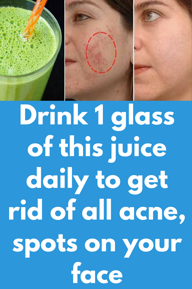 Drink glass of this juice daily to get rid of all acne spots on