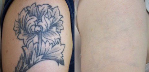 Tattoo Temoval Before And After Pictures   Tattoo removal ...