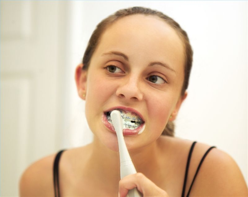 How to brush your teeth while wearing braces teeth