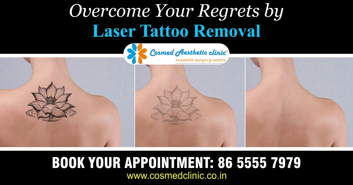 Picosure Tattoo Removal Black Ink Beautiful Top 100 Tattoo Removal
