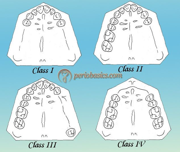 Kennedy\u0027s Classification Being A Doc ^___^ Pinterest Dental