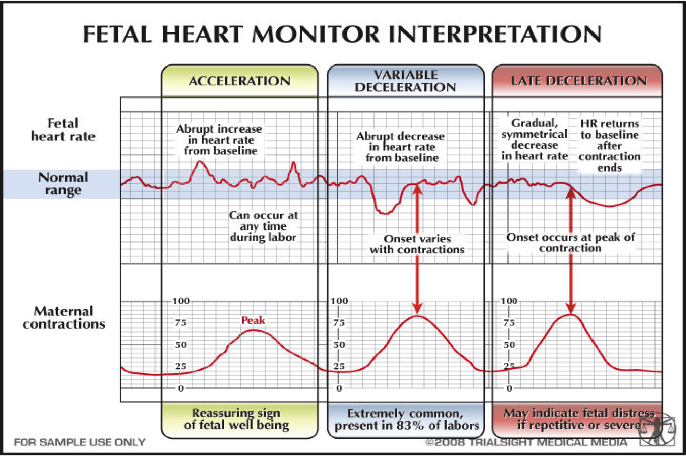 early vs late deceleration - Google Search   Child nursing ...
