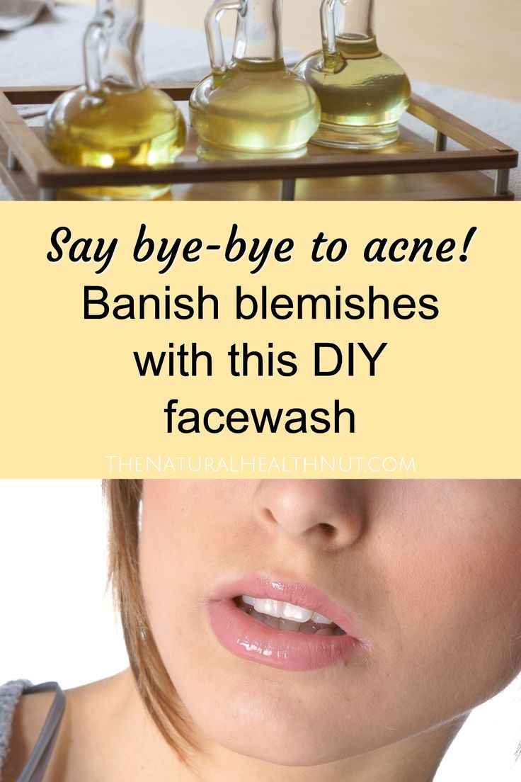 Tea Tree Oil Face Wash Recipe for Acne • The Natural