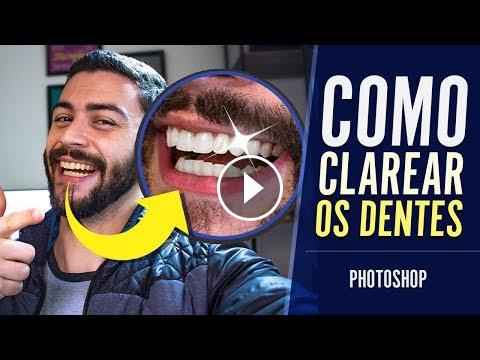 Como Deixar Dentes Brancos Tutorial Photoshop Heber Simeoni Como