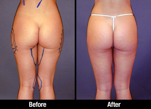 Female thigh liposuction patient before and after photo