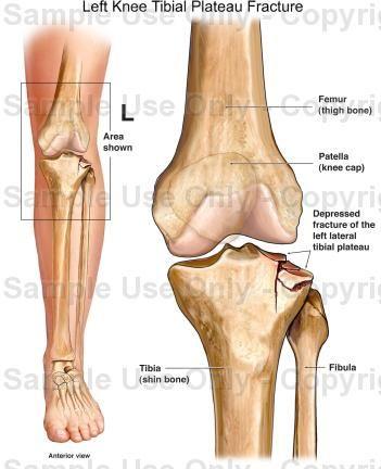Left knee tibial plateau fracture medical illustration human left knee tibial plateau fracture medical illustration human ccuart Image collections