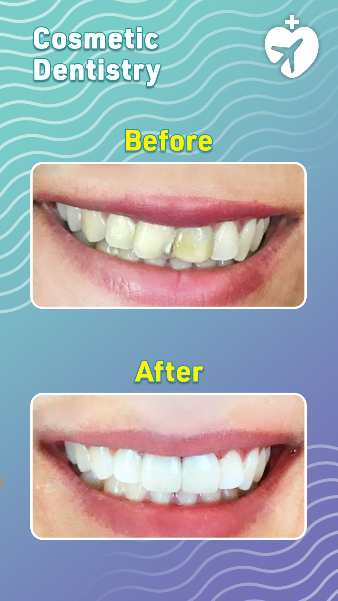 How To Paint Teeth : paint, teeth, Apply, Veneer, Teeth, Arxiusarquitectura