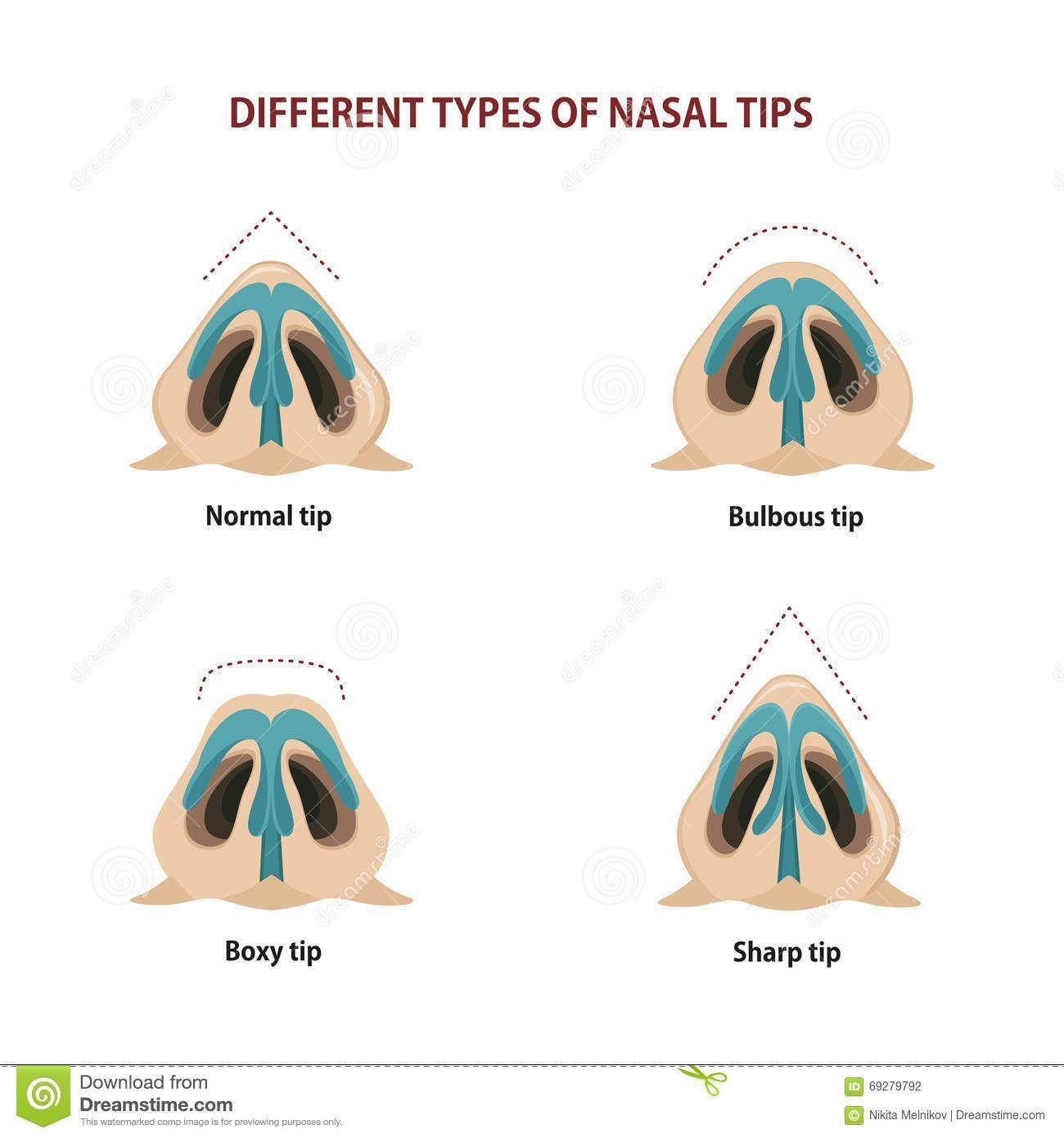 Boxy Bulbous Illustration masculine Nose rhinoplasty