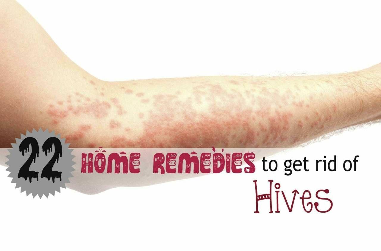 Home Remedy Hacks | Cedarwood essential oil | Home remedies