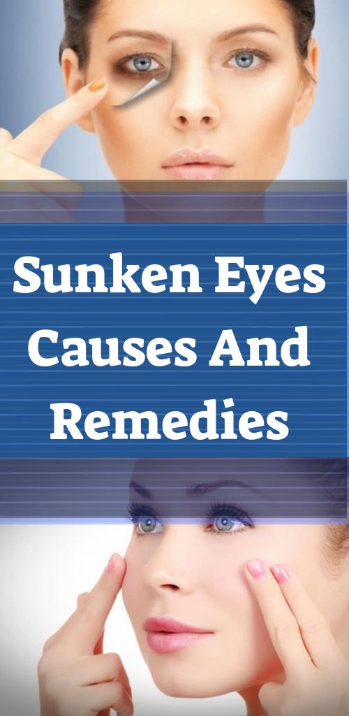 sunken eyes meaning - 500×1024