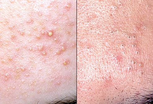 Acne pimples are a plug of fat, skin, and keratin  When open, the