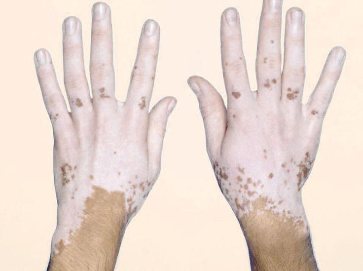 Pin By Enzo On At The Ready Vitiligo Vitiligo Treatment Vitiligo Cure