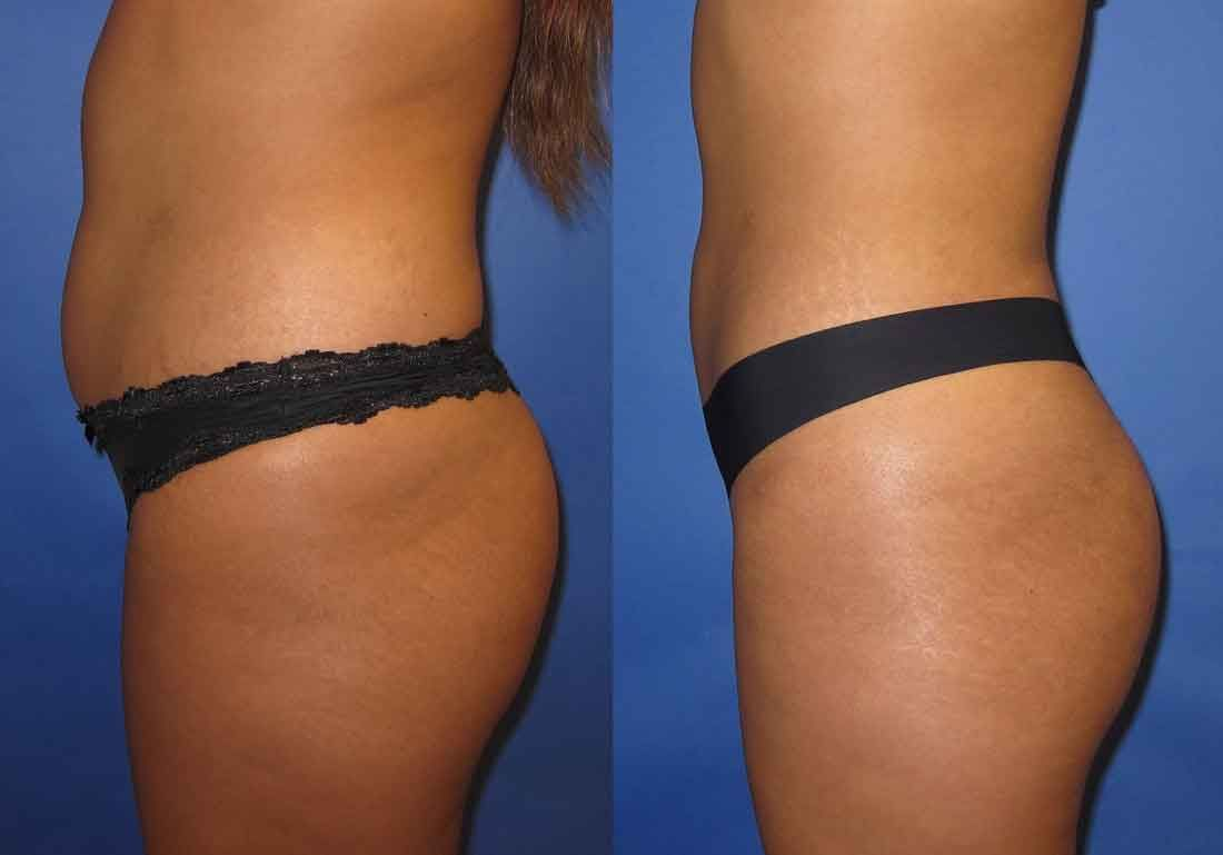 Lipo 360 before and after 15 | Liposuction before and after