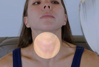 اختلال هرمونات الغده الدرقيه الاعراض والعلاج Thyroid Symptoms Thyroid Neck Thyroid Problems