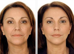 How Much Is Botox For Forehead Frown Grown Lines Around The Eyes Lips Cost And Price Botox Lip Wrinkles How To Line Lips
