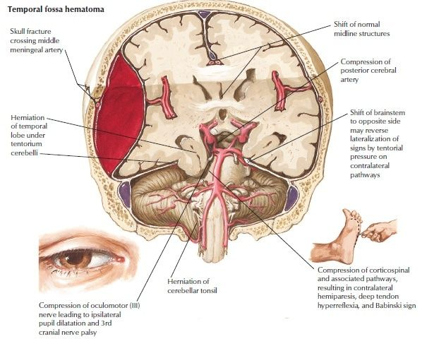 Epidural hematoma  Wikipedia
