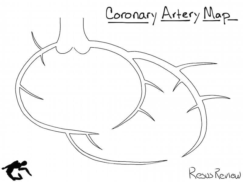 Coronary Artery Diagram | Cardiac cath | Pinterest