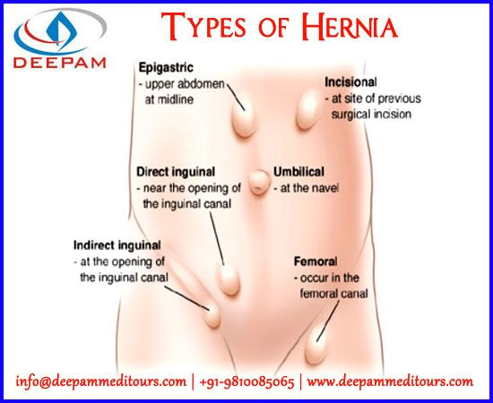 1000 images about general surgery on pinterest no obligation  : hernia locations diagram - findchart.co
