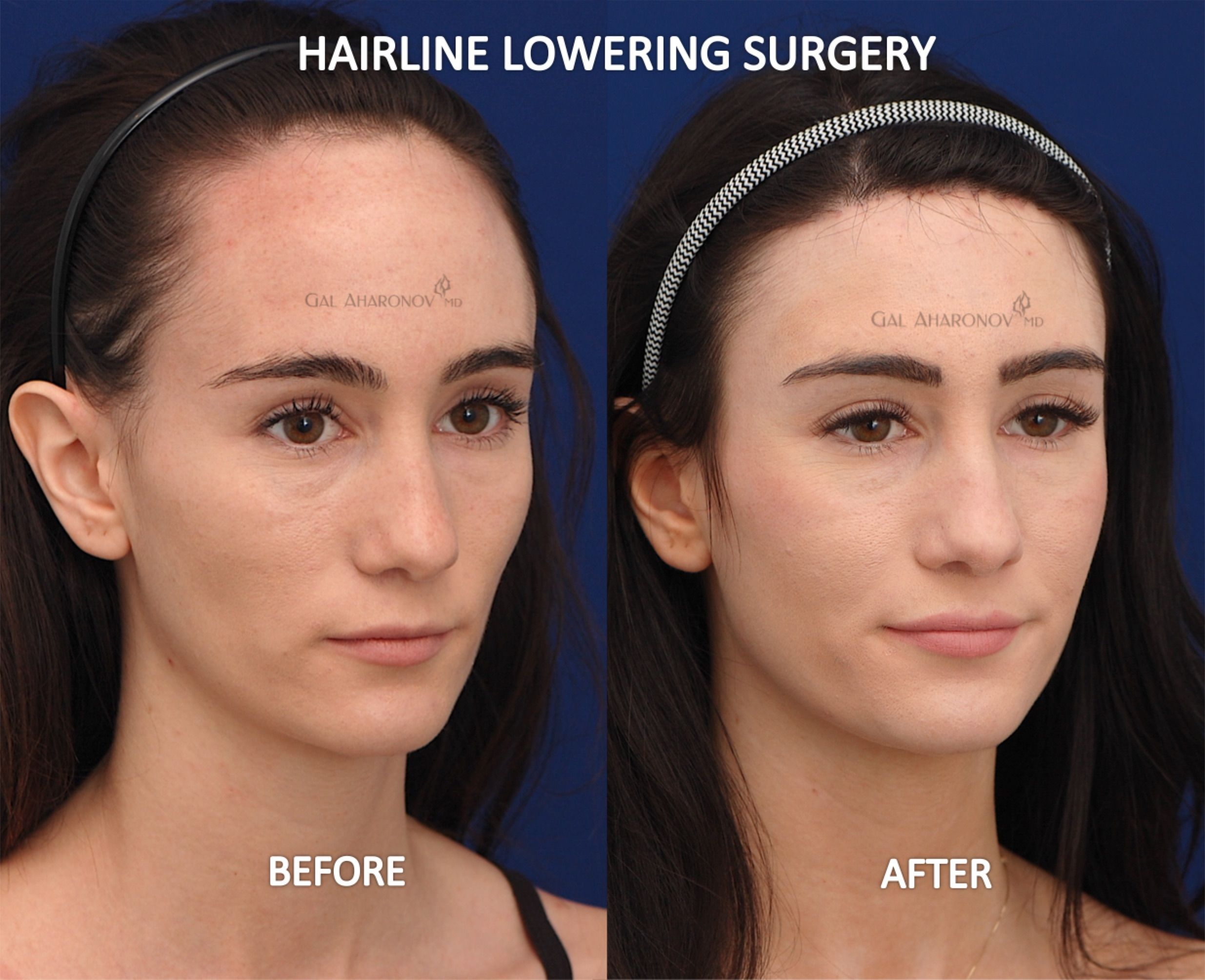 Forehead Reduction Surgery Hairline Lowering Surgery Before And After Photos Forehead Reduction Forehead Reduction Surgery Haircut For Big Forehead