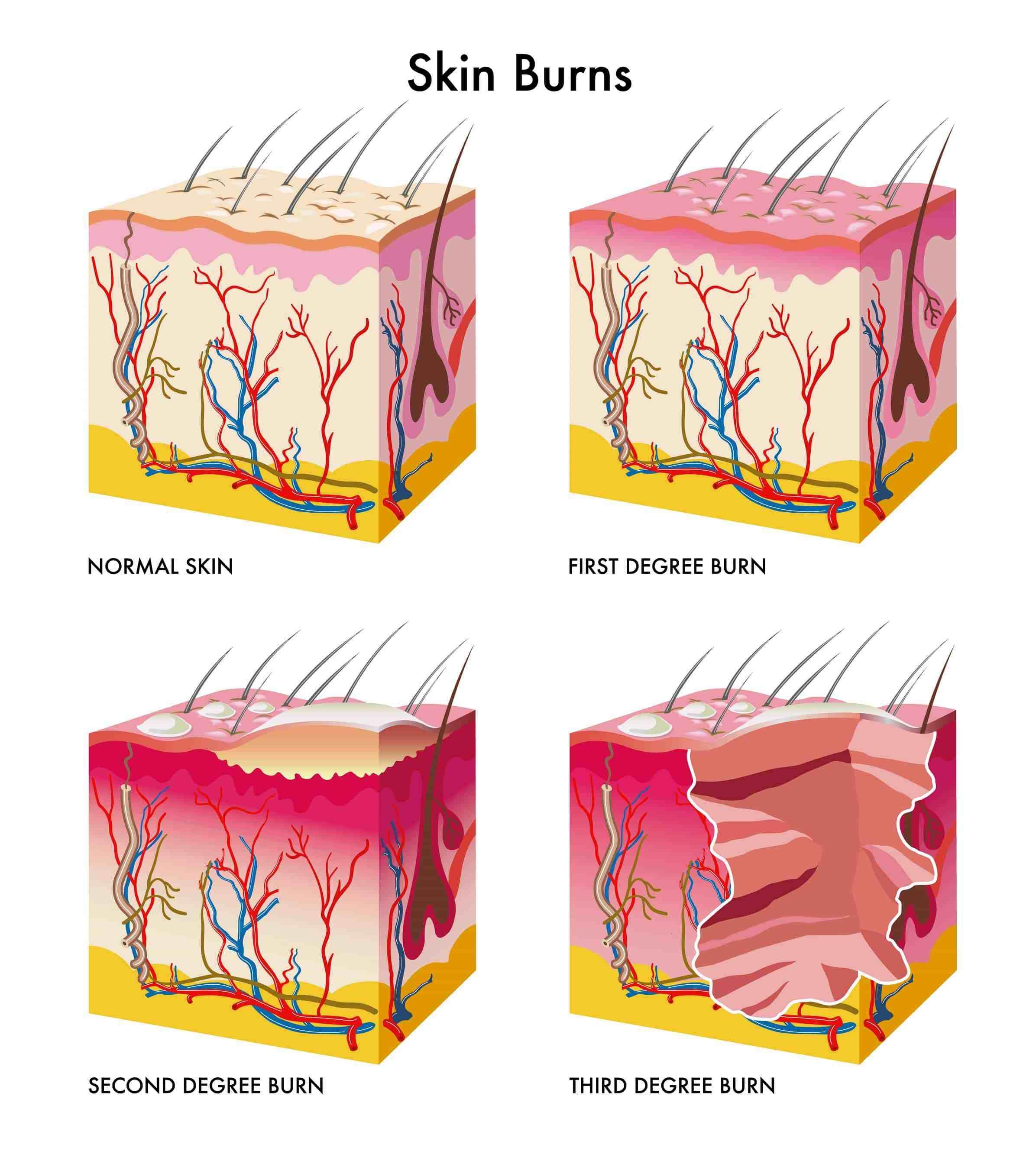 Degrees Burn Degrees Best Plumbing Snake Diagram Card Skin Burns Degree Burns Skin