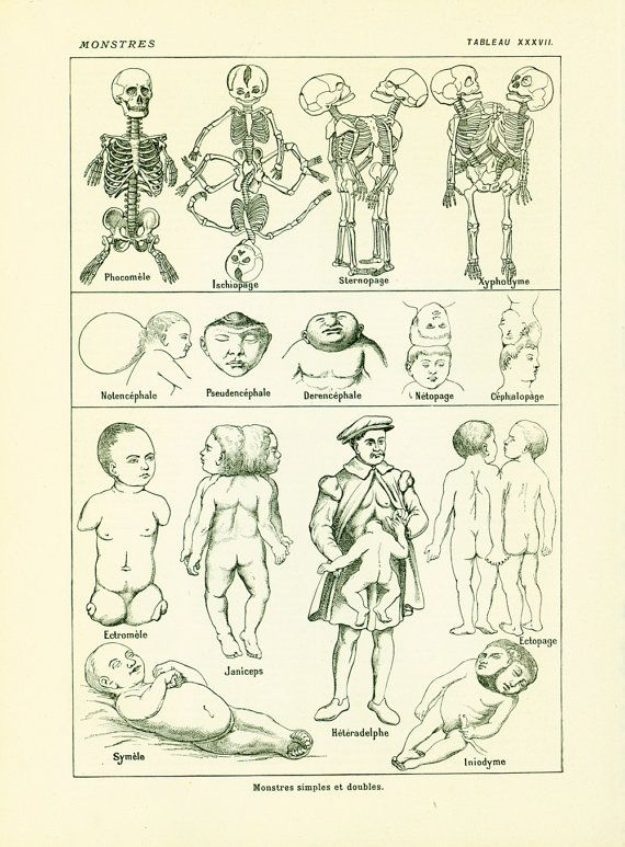 Original Antique Print Taken From The Larousse Medical Illustre