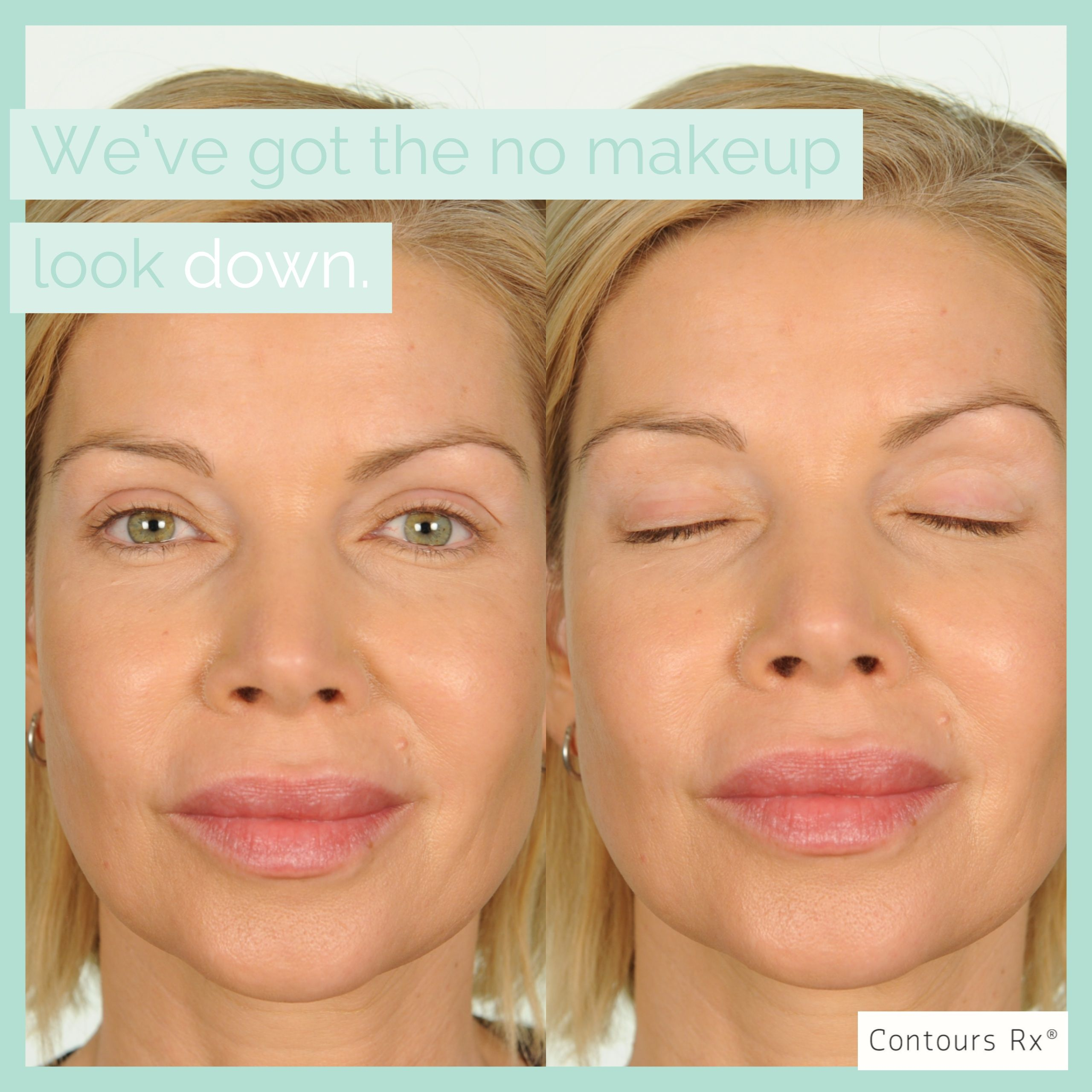 Lids By Design Eyelid Correcting Strips All Things Beauty