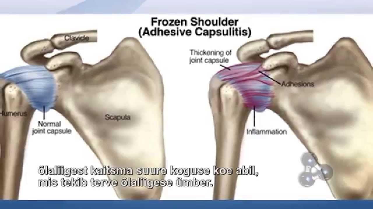 Cómo curar un Hombro Congelado: Tratamiento de Capsulitis Adhesiva y ...