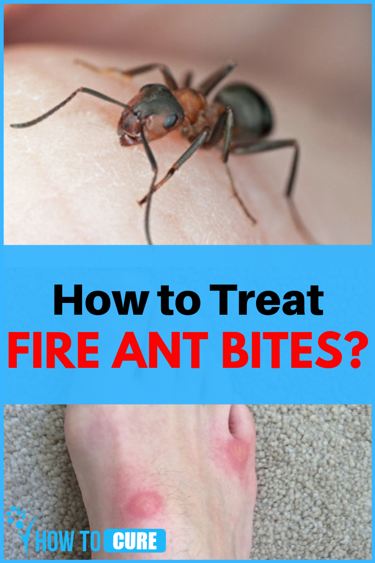 10 Home Remedies For Fire Ant Bites Howtocure Ant Bites Fire Ant Bites Fire Ant Bites Remedies